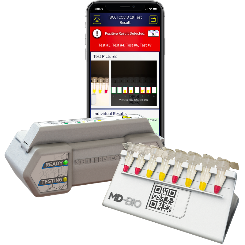 COVID-19 ( SARS-CoV-2 ) Detection Kit