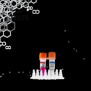 Covid-19 (SARS-CoV-2) Test
